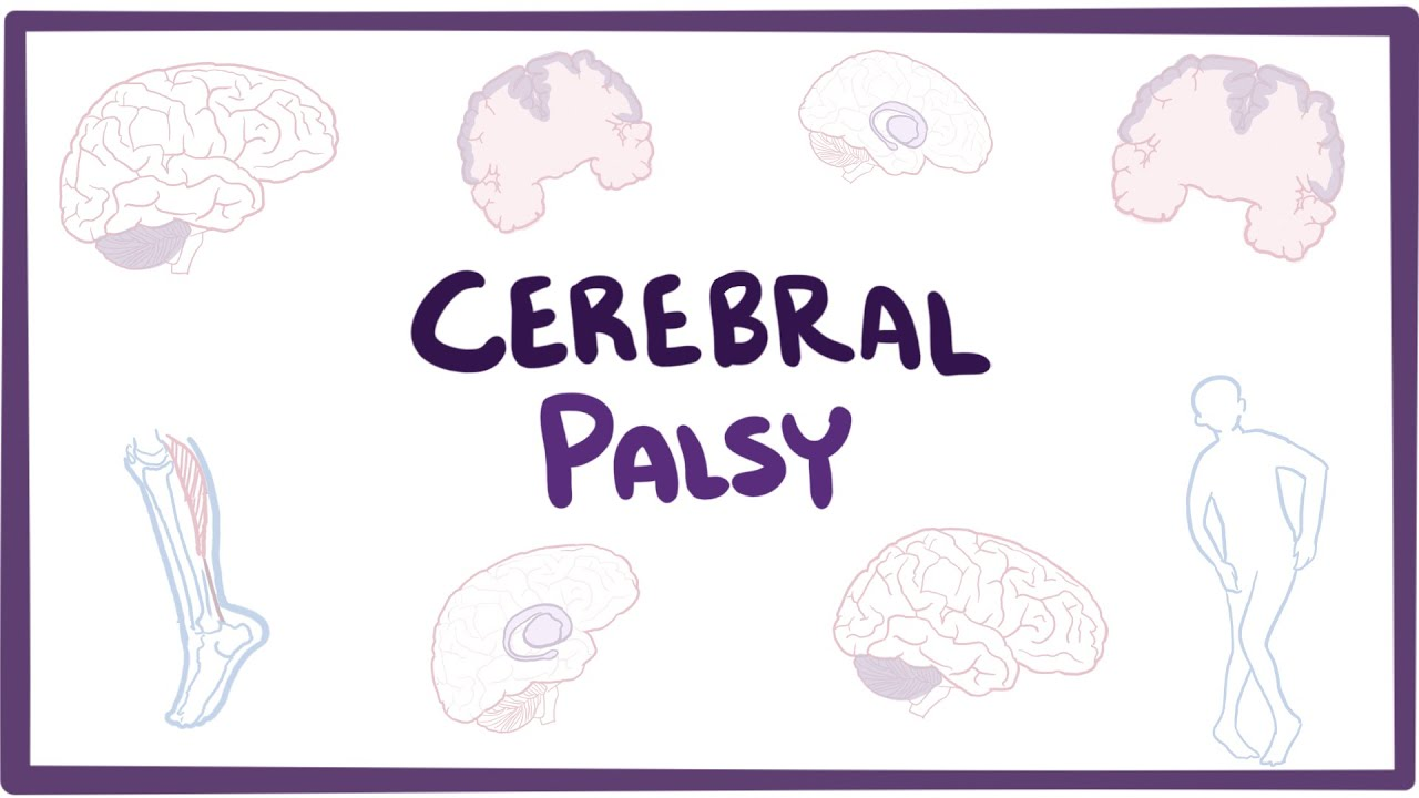 Explainer Videos on Cerebral Palsy - Blog